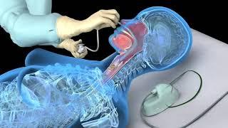 Aspiração nasotraqueal - Fonoaudiologia Hospitalar