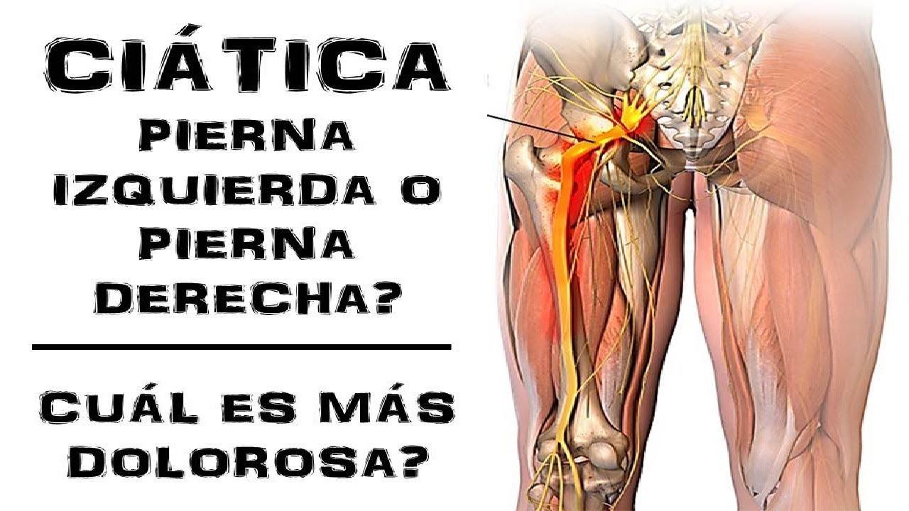 causas ciatica pierna izquierda