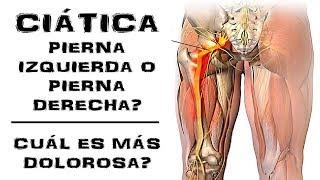 De ciática la pierna izquierda hinchazón