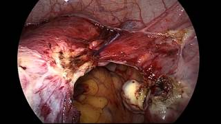 Total Laparoscopic hysterectomy for a large uterus weighing 748 grams.