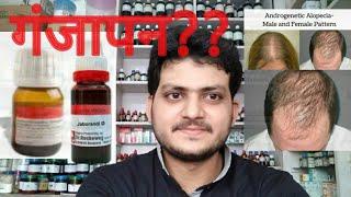 Androgenic alopecia!Homeopathic medicine for androgenic alopecia?? explain!