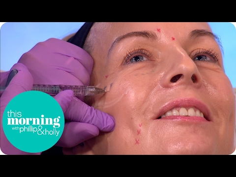 Woman Is Injected With Botox and Fillers Live on This Morning | This Morning