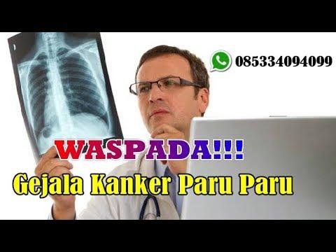 OBAT KANKER PARU PARU ALAMI || Cara Mengobati Kanker Paru ...