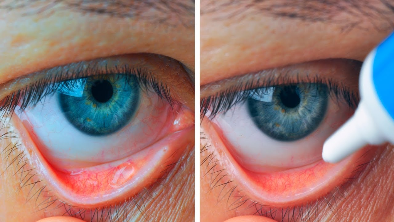 How To Instantly Relieve Red and Itchy Allergy Eyes