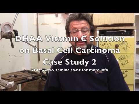 Basal Cell Carcinoma DHAA Vitamin C Case Study Part 1.