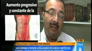 En dolor la pierna hernia causa