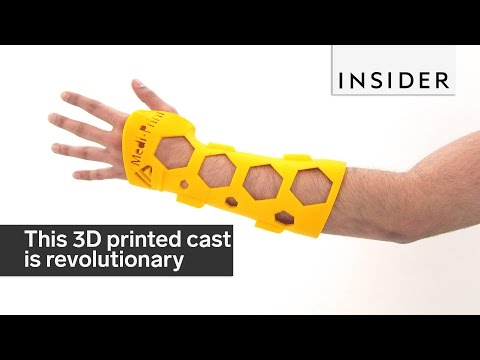 This 3D printed cast is revolutionizing how we heal broken bones