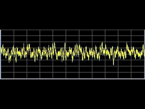PTSD (Posttraumatic Stress Disorder)  - Rife Frequencies