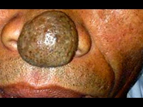 Massive Sebaceous Cyst on Nose - 27.5KB