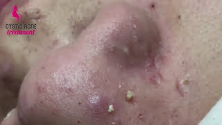 mq2 - Acne Around The Nose