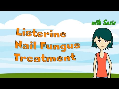 Listerine Nail Fungus Treatment