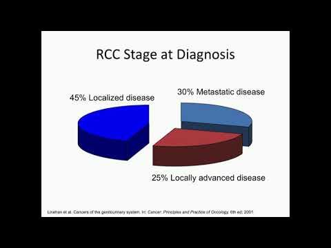 Kidney Cancer Association Introduction - Sandy Srinivas, M.D.