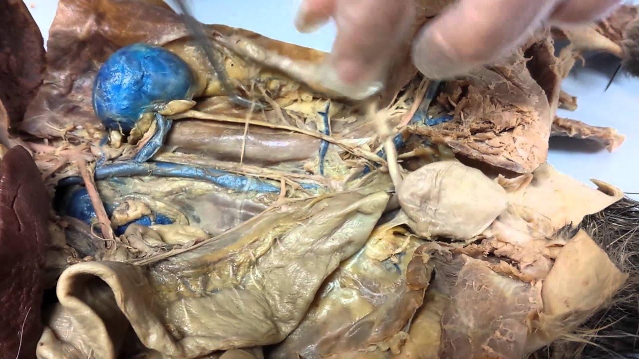Anatomy abdominal arteries - YouTube