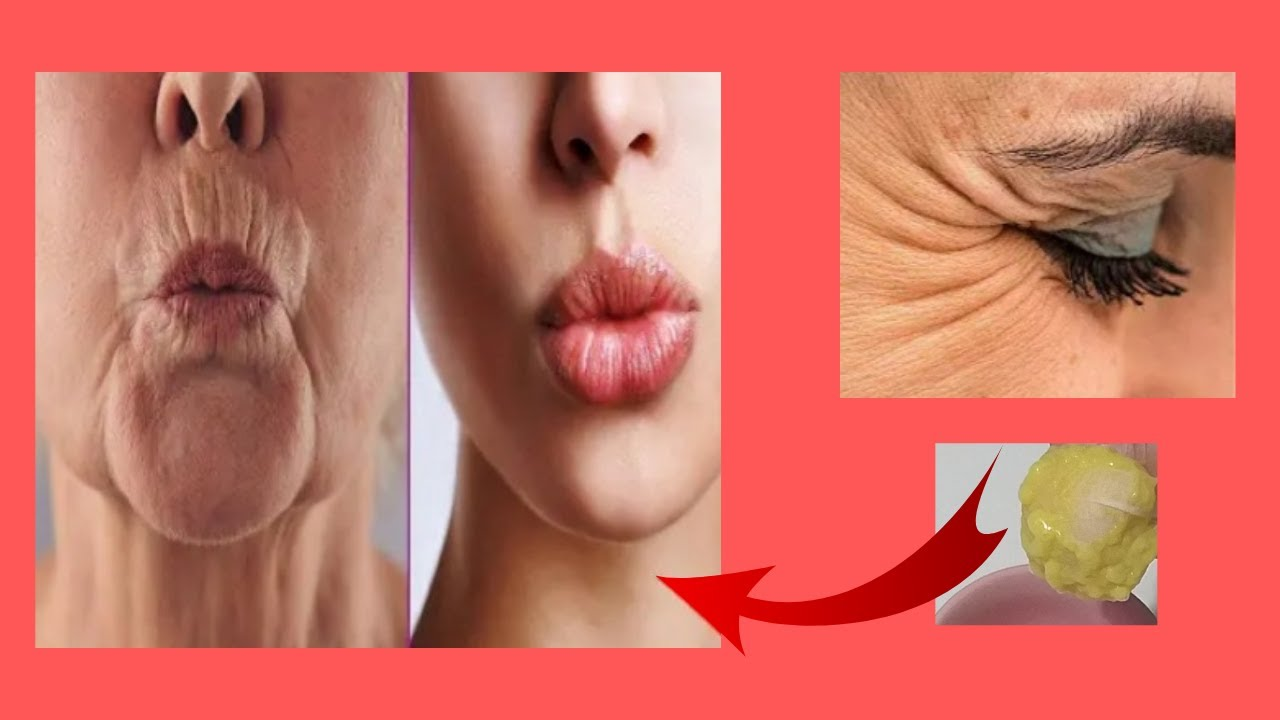 C Vitaminli PATATES KREMİ  İle BOTOKS ETKİSİNE Hazır Olun! Ameliyatsız CİLT GERME - Güzellik Bakım