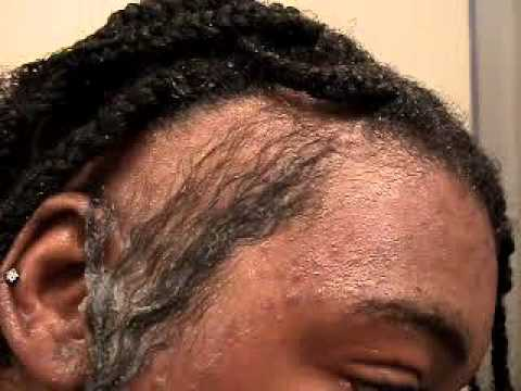 Hair Restoring With Onion YouTube