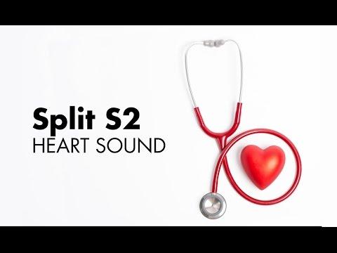 Split S2 Heart Sounds Medzcool Youtube