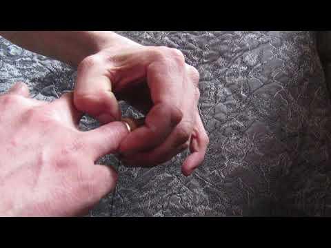 Лайфхак.Как снять кольцо с опухшего пальца ?.☝