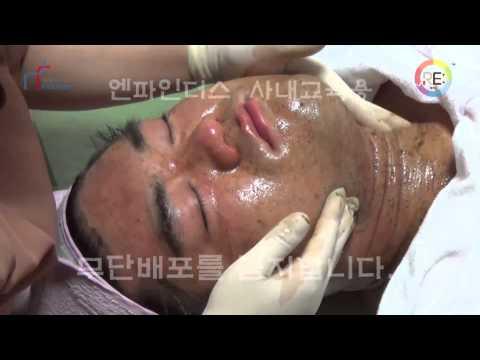 Ozone Peeling (ozonation oil)