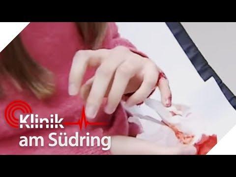 Sechs Finger an einer Hand: Schülerin (12) will kein 'Freak' sein! | Klinik am Südring | SAT.1 TV