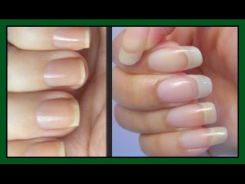 HOW TO MAKE YOUR NAILS GROW STRONGER AND LONGER | FAST RESULT IN 7 ...