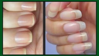 HOW TO MAKE YOUR NAILS GROW STRONGER AND LONGER | FAST RESULT IN 7 DAYS |Khichi Beauty