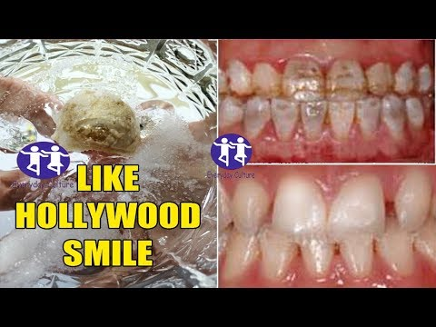 Magical teeth whitening remedy LIKE HOLLYWOOD SMILE in 4 minutes get white teeth , Finally found the