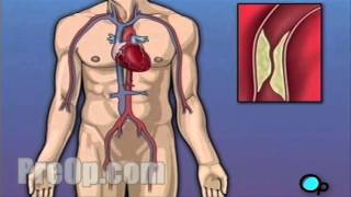 Coronary Artery Bypass Graft (CABG) Surgery PreOp® Patient Engagement and Education