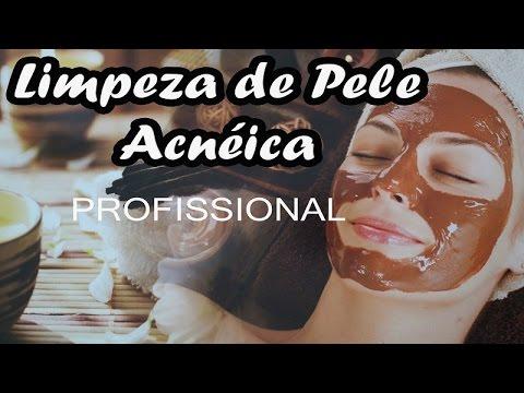 Limpeza de Pele Acnéica Profissional - Marília Jardim / Fisioterapeuta Dermatofuncional