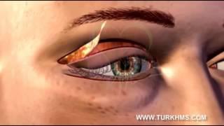 عملية تجميل الجفون تركيا/شد الجفون تركيا/00905070542700/WWW.TURKHMS.COM