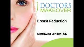 Breast Reduction, Northwest London, UK Thumbnail