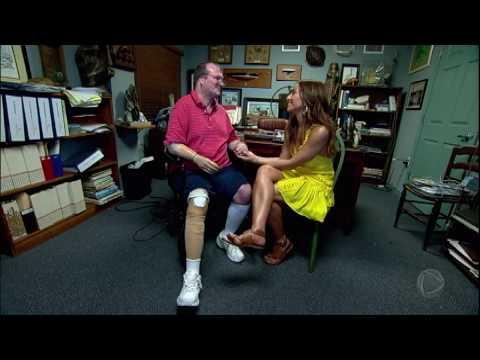 Conheça a história de Russel, o soldado americano que perdeu uma das pernas e um braço