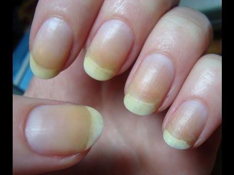 Yellow Nails Remedy - Natural Home Remedies To Cure Yellow Nails ...
