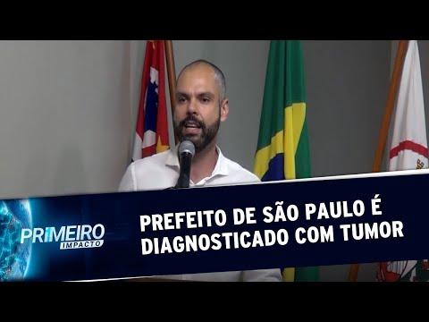 SP: Prefeito Bruno Covas é diagnosticado com tumor no trato digestivo   Primeiro Impacto (28/10/19)