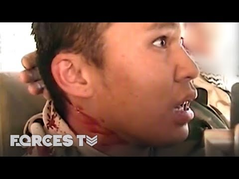 Gunshot Wound To The Head... But Still Laughing | Forces TV