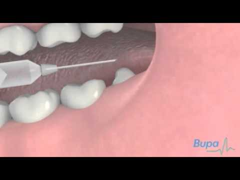 How a wisdom tooth is removed