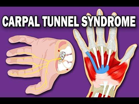 Symptoms of Carpal Tunnel