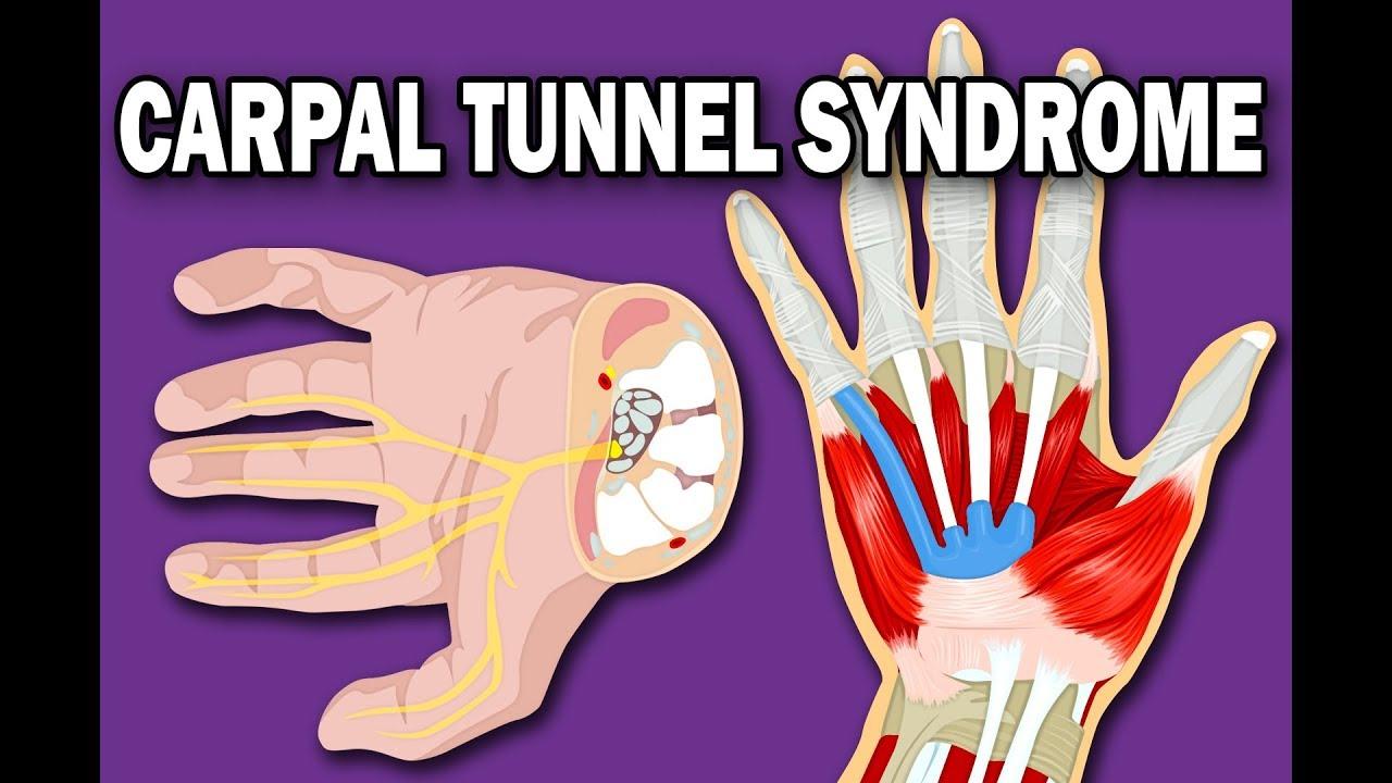 az első carpal carpal ízület artrózisának kezelése)