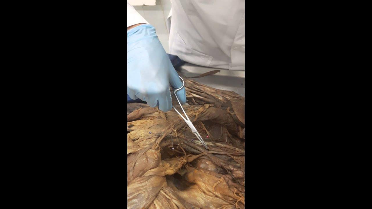 Cordón espermático - YouTube