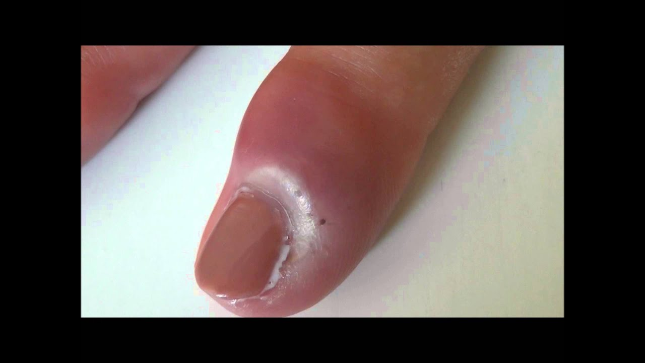 Nail Bed infection - YouTube
