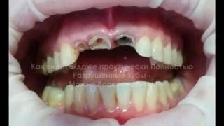 видео Коронка на разрушенный зуб. Что лучше - диоксид циркония или металлокерамика?