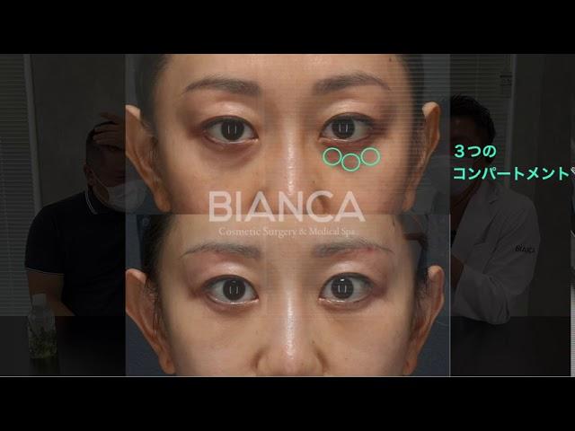 【よくわかる目の下のクマたるみ取りと脂肪注入症例解説】BIANCA CLINIC