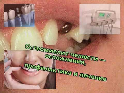 Осложнения после протезирования зубов болит челюсть