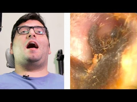 People Get Earwax Extractions For The First Time
