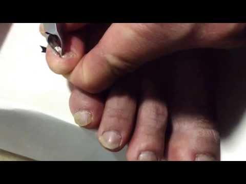 Han Chinese toenail