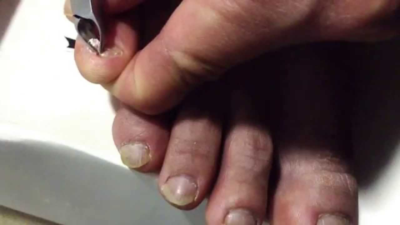 Han Chinese toenail - YouTube