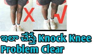 Knock knee correction exercise in telugu ||knock knee  problem solution explain in Telugu 2019