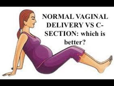 Series 17#: NORMAL VAGINAL DELIVERY vs C-SECTION: pros ...