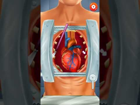 Kids Games Fun -PLAY OPERATE NOW  HEART SURGERY GAME ONLINE virtual surgery games