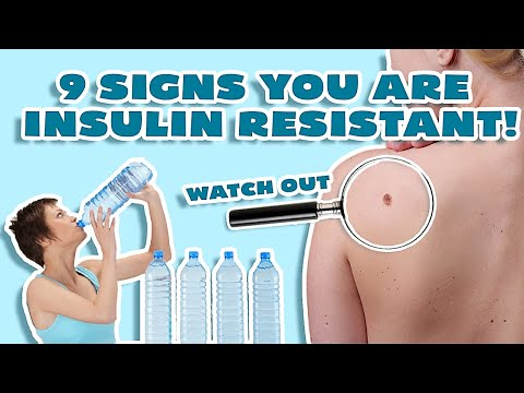 Insulin Resistance Symptoms (WHY YOU CAN'T LOSE WEIGHT!)