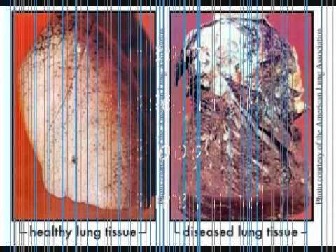 Dangers Of Tobacco